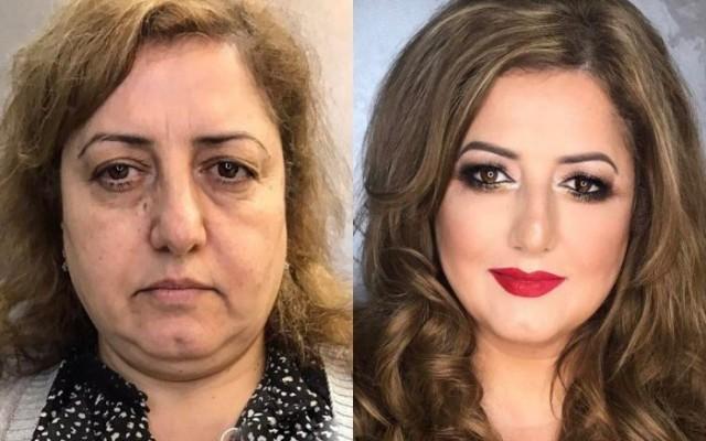 Amikor a kozmetikus csodát tesz