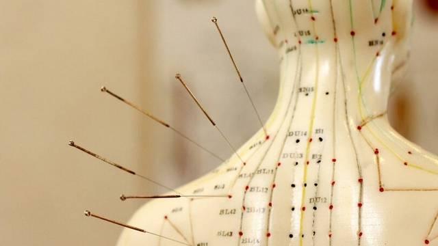 Honnan származik a hagyományos keleti gyógymód, az akupunktúra?